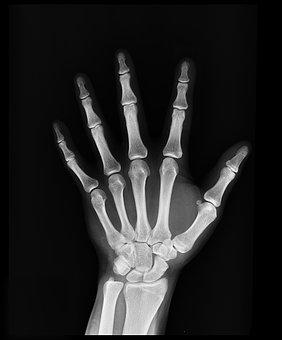 x-ray-1704855__340[1]